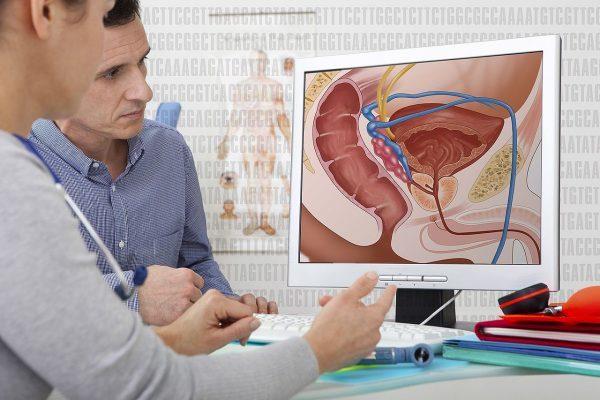 методы лечени простатита