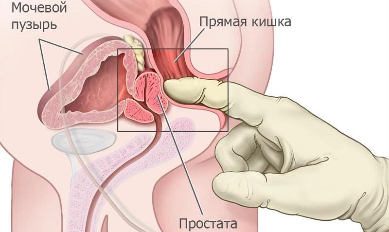 массаж простаты эффективный способ лечения простатита