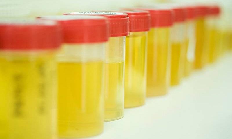уринотерапия лечение простатита