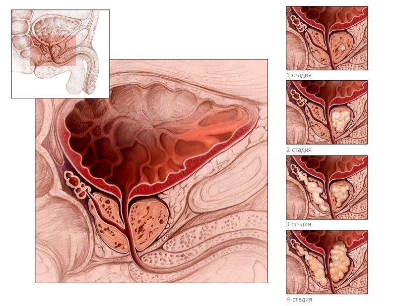 Победить рак предстательной железы
