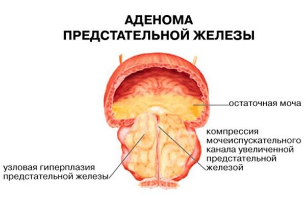 Аденома простаты: основные методы лечения