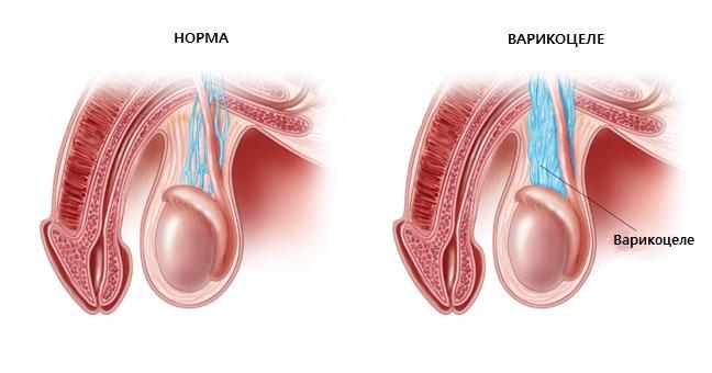 Варикоцеле: основные признаки болезни и лечение