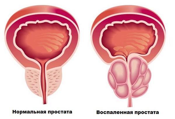 Простатит: чем опасна болезнь для мужчин