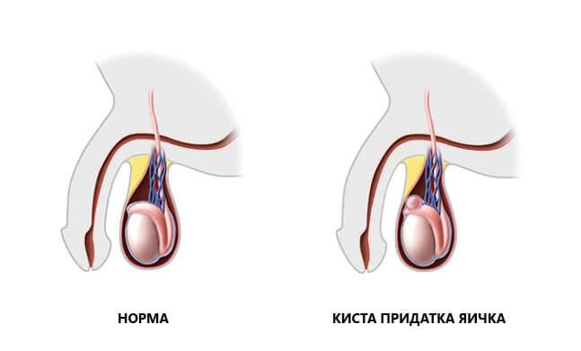 Сперматоцеле у мужчин